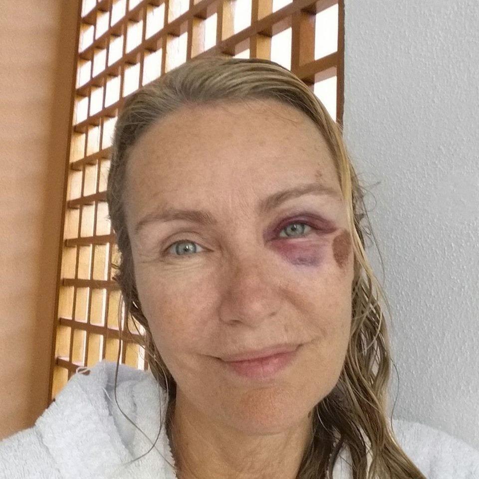 Licia Colò, l'occhio nero: