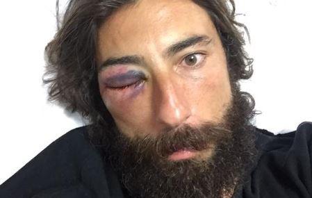 Vittorio Brumotti: nuova aggressione per l'inviato di Striscia