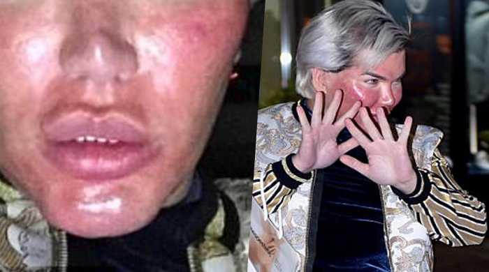 Ken umano shock: ecco come si è ridotto la faccia ...