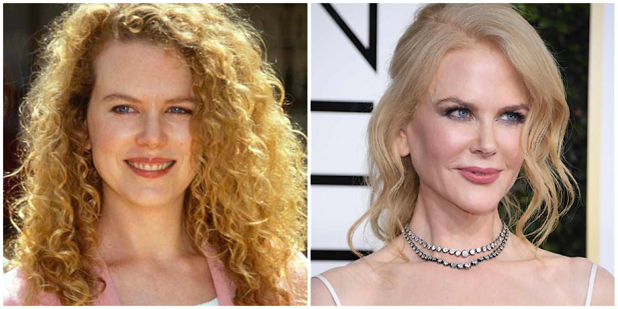 Nicole Kidman perima e dopo